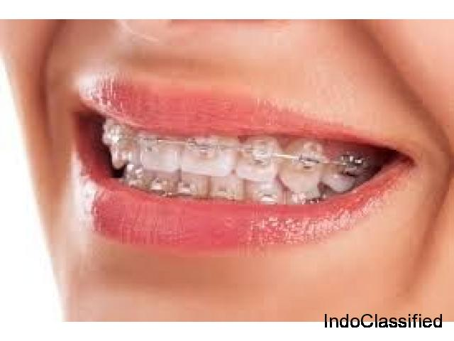 Braces Treatment in Gurgaon With Best Medical Facilities | Dr. RajaGopal's Clinic.