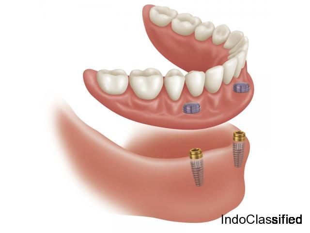 Best Implant Specialist in Delhi | Dr. Gargi Kandhari