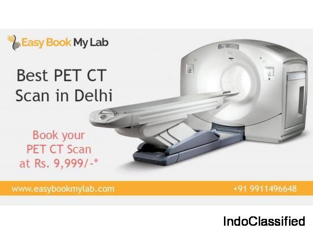 PET-CT Scan Centres in Delhi - Easybookmylab