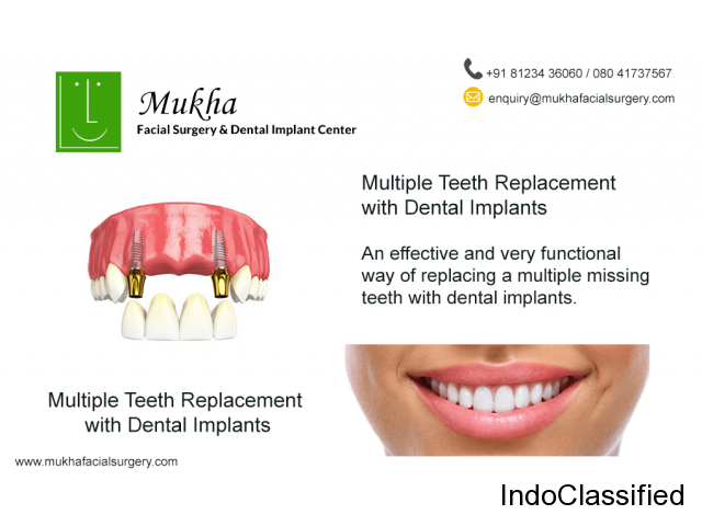 BEST ORAL DENTAL IMPLANT CENTER IN BANGALORE