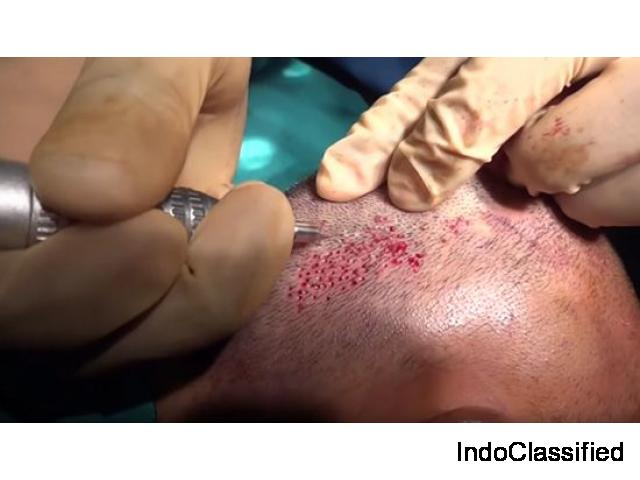 Book an Appointment for Hair Transplant Surgery in Delhi
