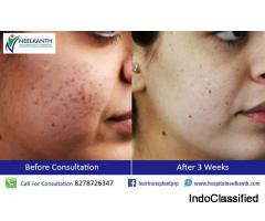 Best Laser Treatment in Himachal