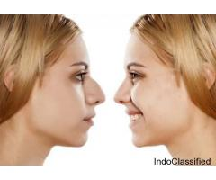 Rhinoplasty Surgery, Nose Surgery, Nose Surgery Cost in Hyderabad