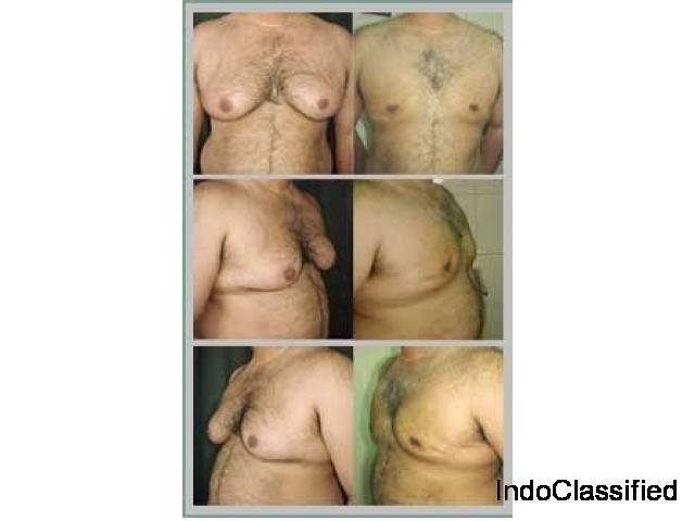 Gynecomastia Surgeon in Punjab