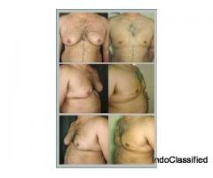 Gynecomastia Surgeon in Punjab
