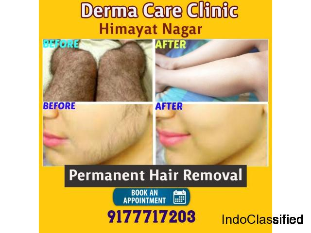 Permanent Hair Removal in Hyderabad  | Laser Hair Removal in Himayat Nagar