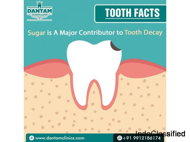 best dental clinic in Hyderabad