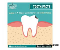 best dental clinic in Hyderabad