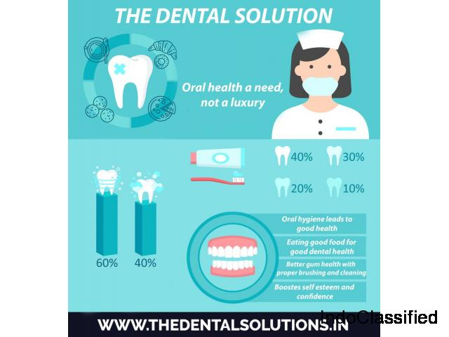 The dental solutions is best clinic in Thane at Affordable Cost.