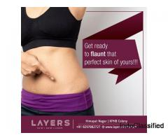 Treatment for Stretch Marks and Accidental Marks | Layers Clinics