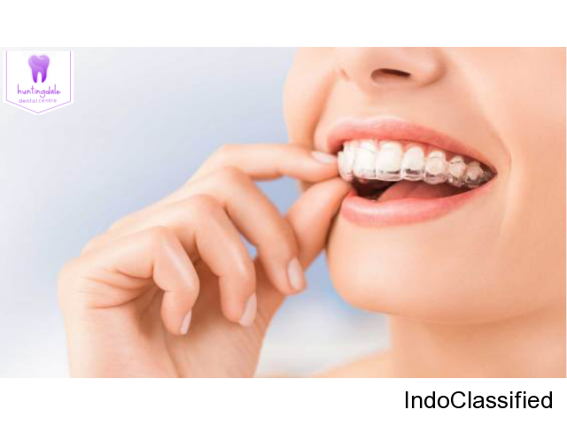 Best Invisalign Burwood | Huntingdale Dental Centre