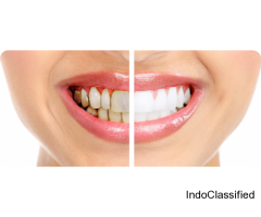 For Good Oral Hygiene Contact with Best Dentist in Vasundhara