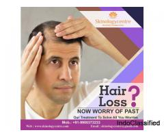 Best Hair Transplant Centre / Clinic in Bangalore – Skinology Centre