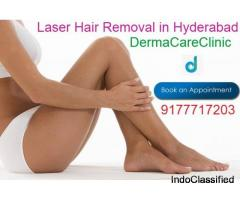 Laser Hair Removal in Himayat Nagar | Laser Hair Removal in Hyderabad