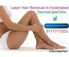 Laser Hair Removal in Himayat Nagar | Laser Hair Removal in Hyderabad