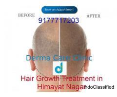 Hair Growth Treatment in Himayat Nagar Hyderabad | Hair Clinic in Himayat Nagar | DermaCareClinic