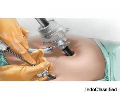 Best Laparoscopic Surgeon in Bangalore | Laparoscopic Surgery Cost in Bangalore