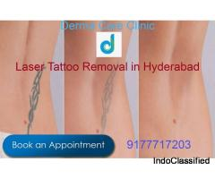 Top Laser Tattoo Removal in Himayat Nagar Hyderabad | Laser Tattoo Removal in Hyderabad