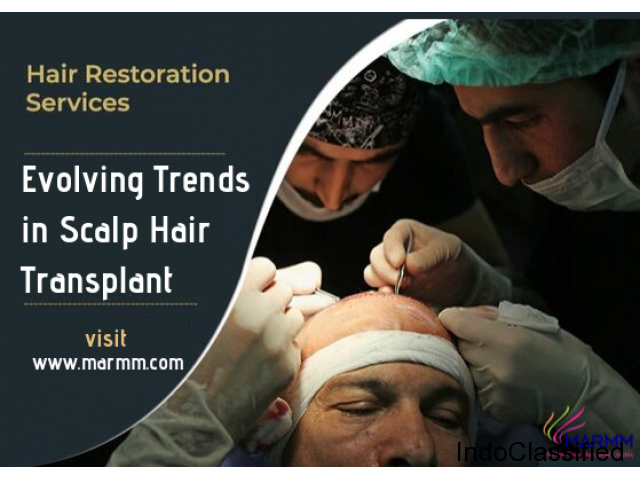 Hair Doctor in Indore: Who can be a candidate for a Hair Transplant?