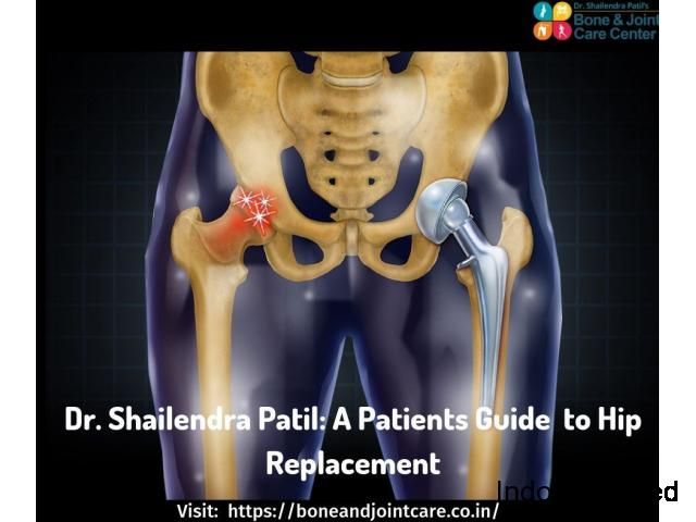 Avoid Replacing Total Hip Surgery, just resurface it- Total Hip Replacement Surgery cost in Thane