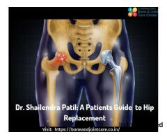 Avoid Replacing Total Hip Surgery, just resurface it - Total Hip Replacement Surgery cost in Thane