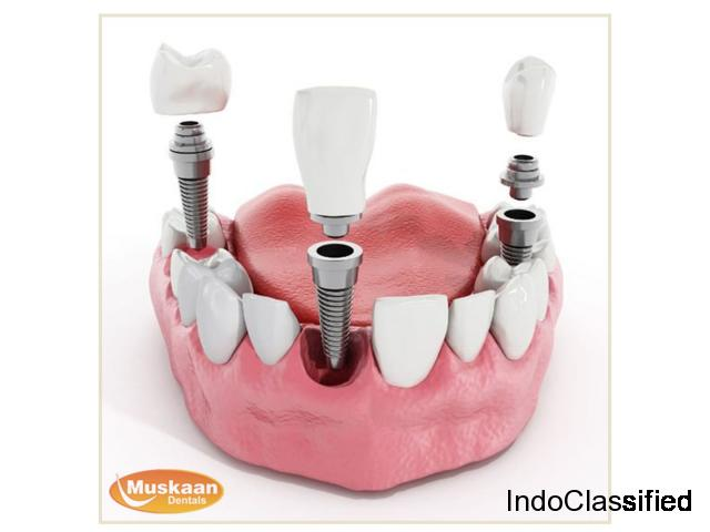 Dental Implants - The Permanent Solution