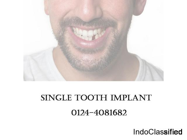 Single Tooth Implant – Muskaan Dentals