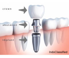 Dental implant surgery in Gurgaon