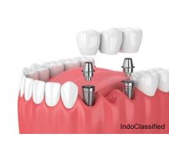 Bridges in Dentistry