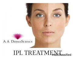 IPL Treatment - Derma Science Dermatology Clinic