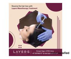 Mesotherapy Treatment For Hair Fall, Causes - Layers Clinics