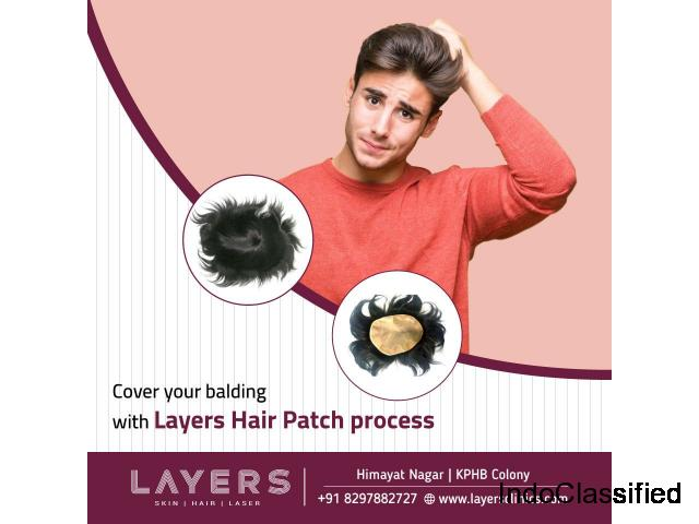 Non Surgical Hair Patches In Hyderabad | Clipping | Hair Bonding - Layersclinics