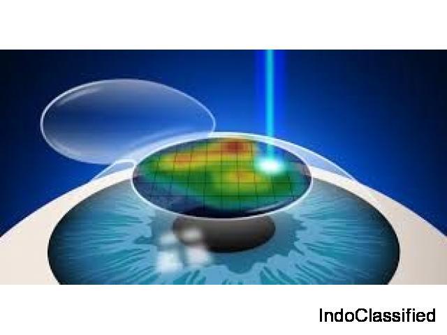 Contoura Vision Lasik Laser Surgery in Delhi