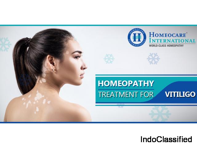 Vitiligo Treatment In Homeopathy