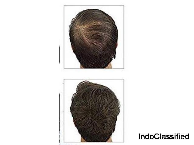 To Make Hairs Healthy Use Shridhar Kasturi Hair Oil
