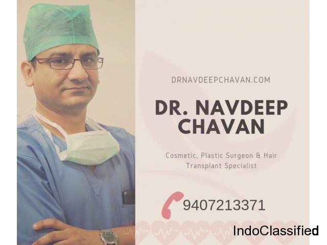 Hair Transplant Surgeon in India - Dr Navdeep Chavan
