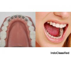 One Of The Best Invisalign Invisible braces treatment in Gurgaon