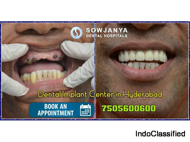 Dental Implants in Hyderabad | Best Cosmetic Dentist in Hyderabad