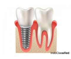 One Of The Best Invisible Braces For Adults in Gurgaon