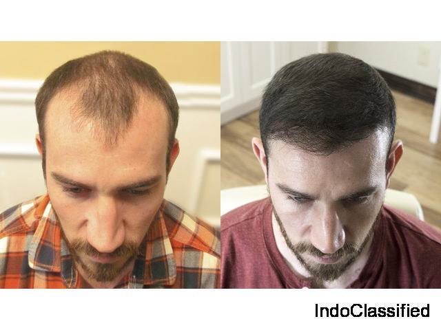 Best Hair Transplant Surgeon in Delhi