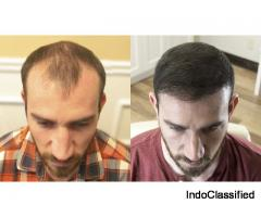 Best Hair Transplant Surgeon in Delhi
