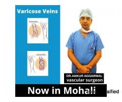 Best vascular Surgeon in Chandigarh