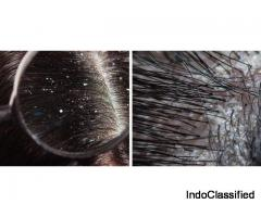 Difference between Dandruff and Dry Scalp - Re'equil