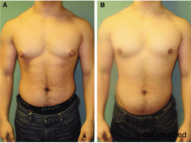 Top 10 Male Breast Surgery In Lucknow