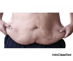 Best Body Lift Surgery in India