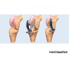 knee specialist in pune - Saishree Hospital