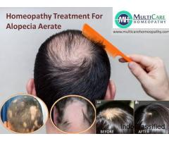 6 Best Homeopathic Medicines for ALOPECIA & BALDNESS Treatment