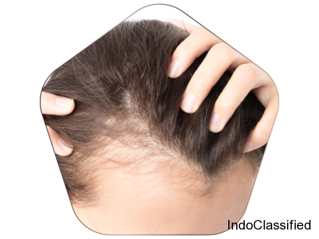 Hair loss treatment in Hyderabad.