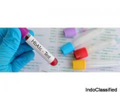 HbA1c test :  Dr. Mohan's Diabetes  Centre