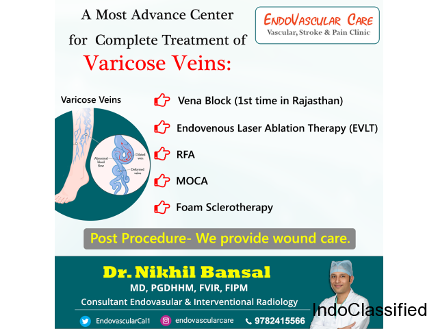 Get painless and fast recovery varicsosities by varicose veins doctor in Jaipur.
